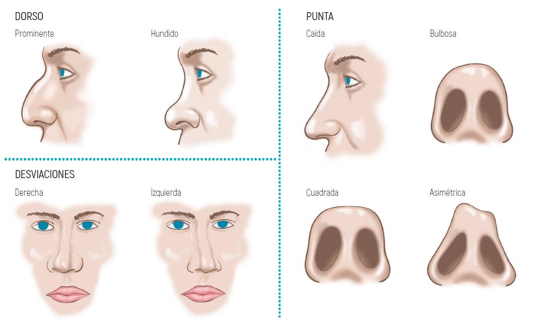 Alteraciones y causas de la rinoplastia
